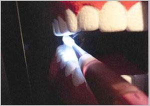 光る歯ブラシ
