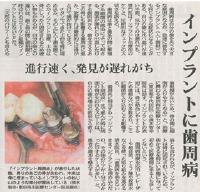インプラントに歯周病
