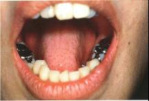 銀歯の寿命は8年!