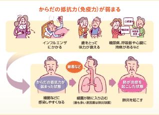 """永六輔さんの命を奪った """"高齢者の肺炎"""""""