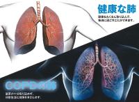 あなたの肺は何歳?
