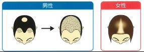 育毛は頭皮のスキンケア
