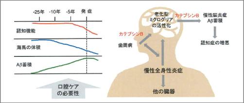 アルツハイマー 歯周病が誘発