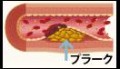 血管年齢を若くキープする方法