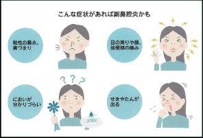 もしかして副鼻腔炎?