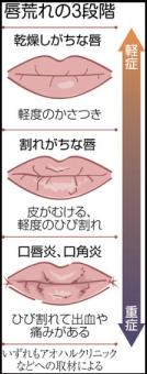 冬の唇荒れ