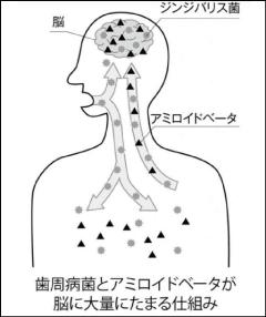 悪玉中の悪玉「ジンジバリス菌」に要注意