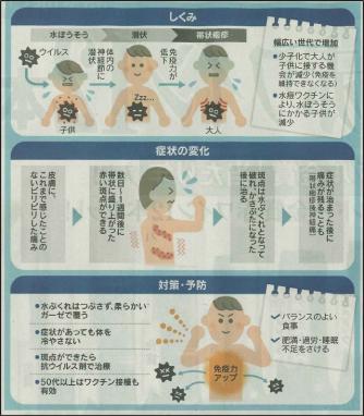 帯状疱疹、広い世代で増加