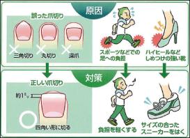 足の爪トラブル予防